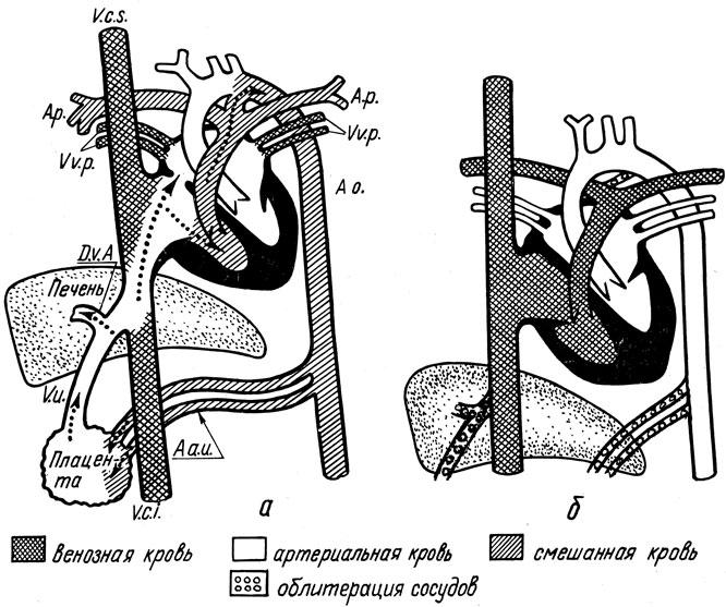 Схема внутриутробного
